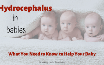 Hydrocephalus in Babies – Your Most Common Questions Answered