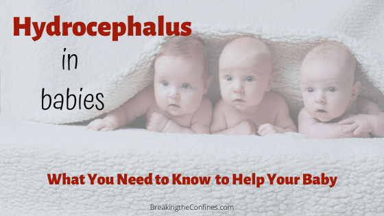 Hydrocephalus in babies - get your most common questions answered about this condition